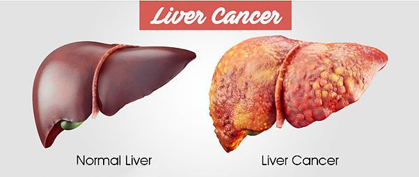 liver cancer treatment cost in India
