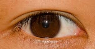 What are the common eye injuries