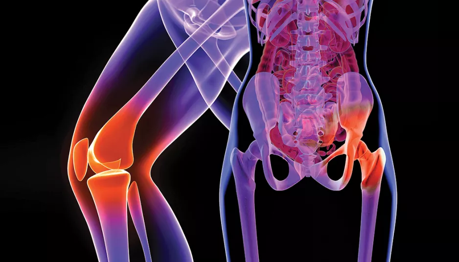 How long does it take to recover of total hip replacement